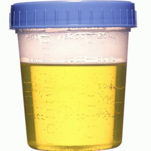 urine-youreout