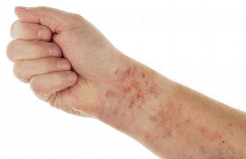 inflammation skin
