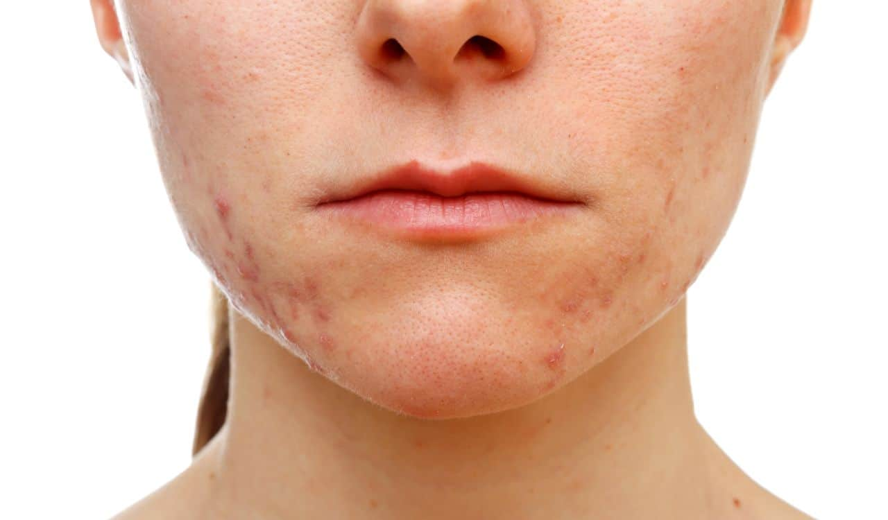 Hyaluronic Acid Helps With Acne Issue