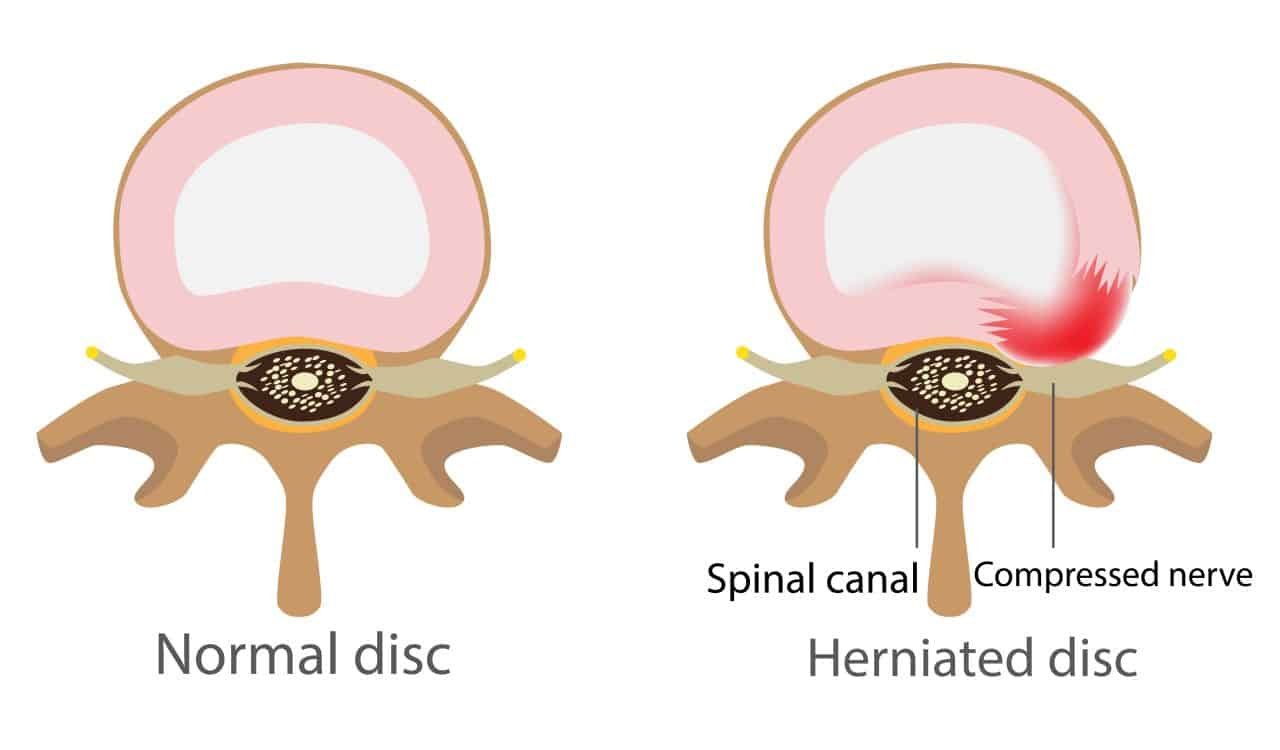 Normal Disc And Herniated Disc