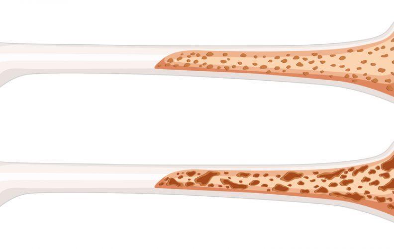 Exercises That Increase Bone Density