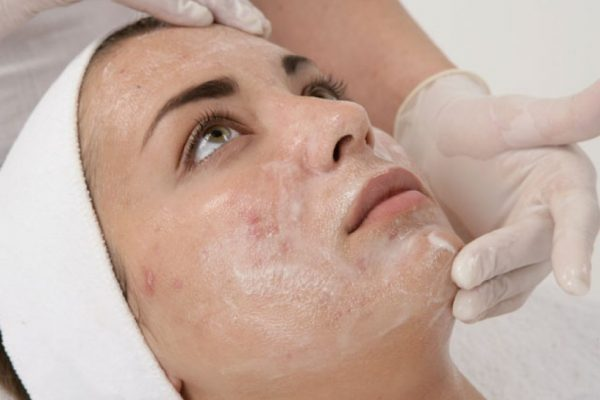 we tested the best glycolic acid peels on the market
