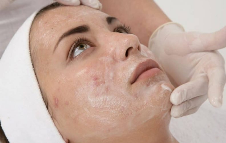 we reviewed the best glycolic acid peels on the market
