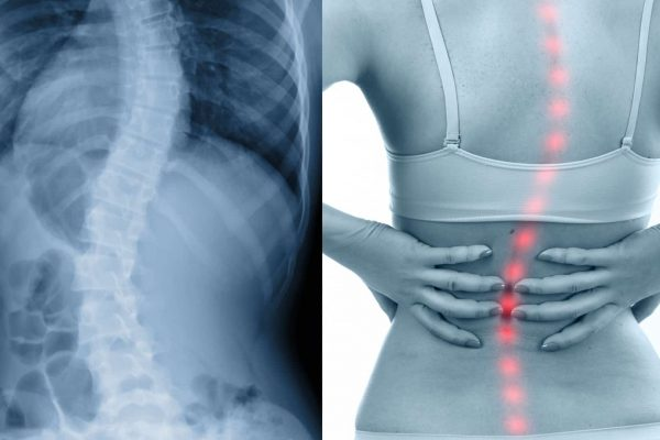 Scoliosis Spinal Bend